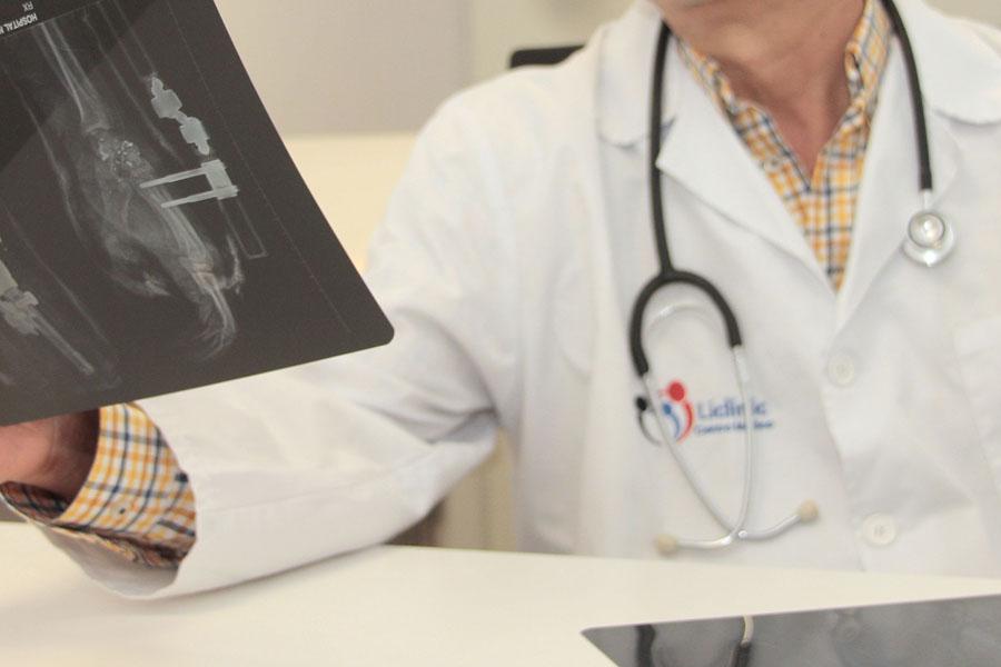Facultativo de Liclinic observando una radiografía